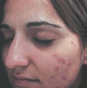 skin-revolution-dordrecht-acne-behandeling-voor