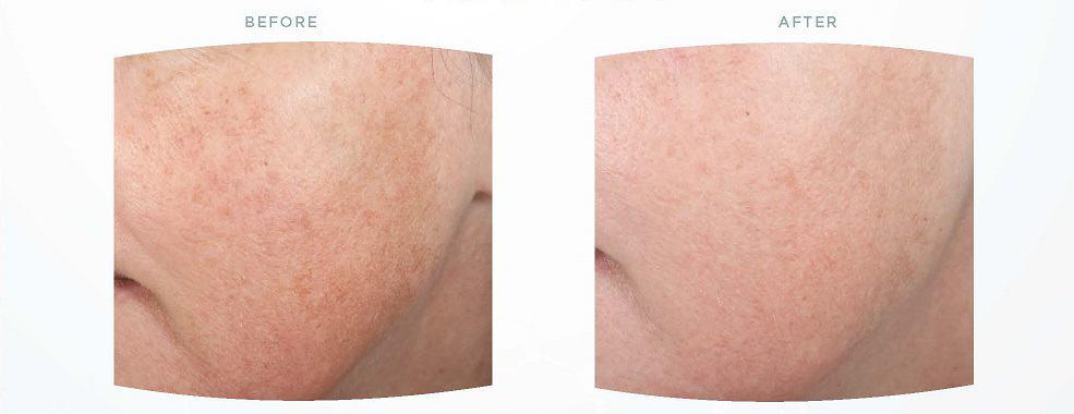 pigment-verwijderen-huid-peeling
