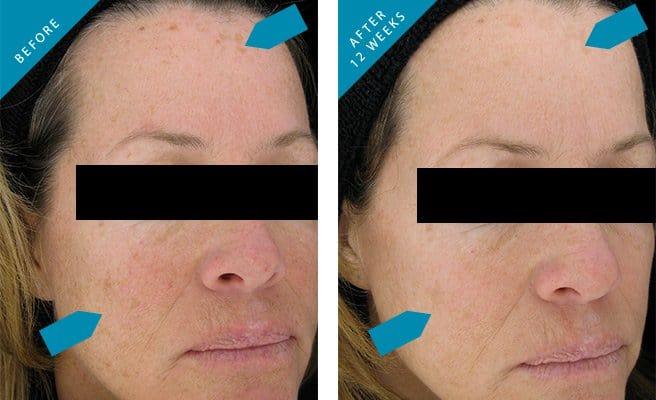 pigmentvlekken creme en behandeling kliniek arts schoonheidsspecialiste huidspecialist